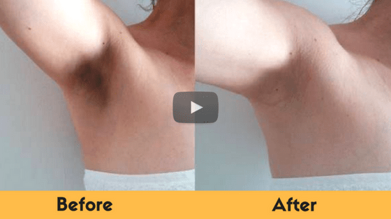 how to get rid of dark underarms naturally fast 5 home remedies. Black Bedroom Furniture Sets. Home Design Ideas