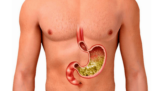Natural Cures For Stomach